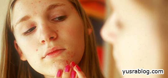 How to Stop Pimples Naturally