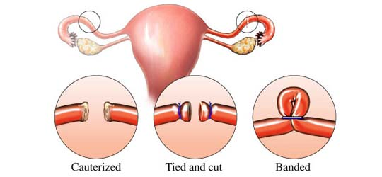 Tubal Ligation Reversal or IVF Awareness