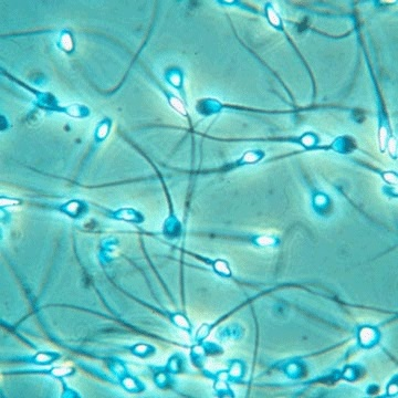 Sperm Count and Analysis: 7 Little Known Things That Can Affect Sperm