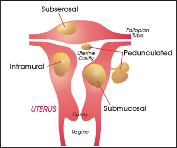 Urinary Frequency, Symptom of Pregnancy