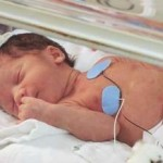Risk Factors Preterm Birth | Are You at Risk for Premature Labor?