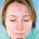 Acne Prevention: Pimples Treatment Tips and Information