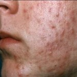 Teenage Acne: Home Remedies for Pimples