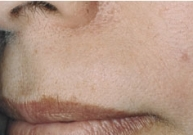 Upper Lip Hair Removal For Women: Methods and Information