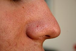 Effective Tips On Stop Acne Reinfection