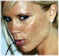 General Tips For Getting Rid Of Skin Discoloration