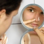 Easy and Effective Acne Treatment At Home