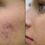 Acne Scars Symptoms and Treatment: Home Remedies For Acne Scars