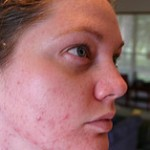 Acne Scars Treatment at Home: Removing Acne Scars with Home Remedies