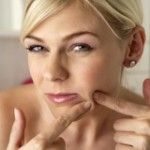 The 10 Most Useful Tips for Face Pimples Treatment at Home