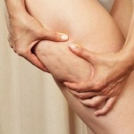 10 Effective but Practical Ways to Get Rid of Cellulite