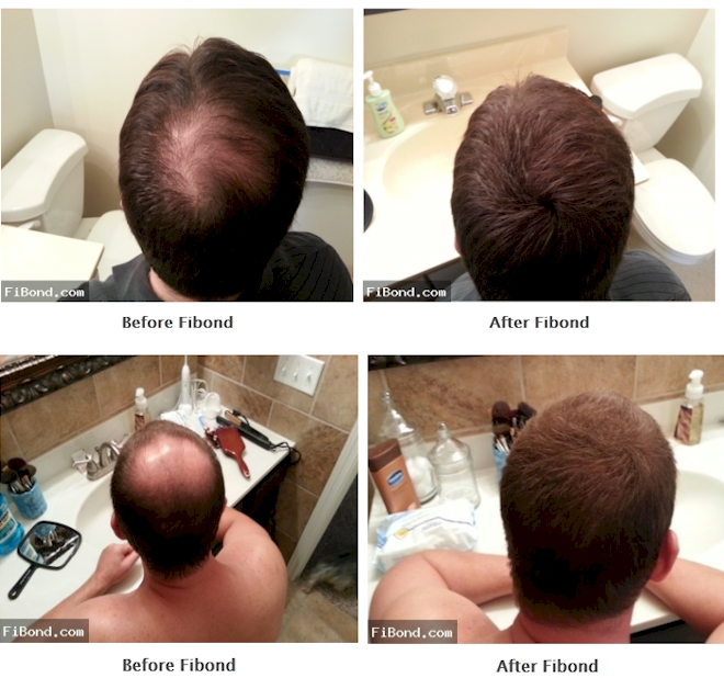 Are you Frustrated with Balding and Thinning Hair?